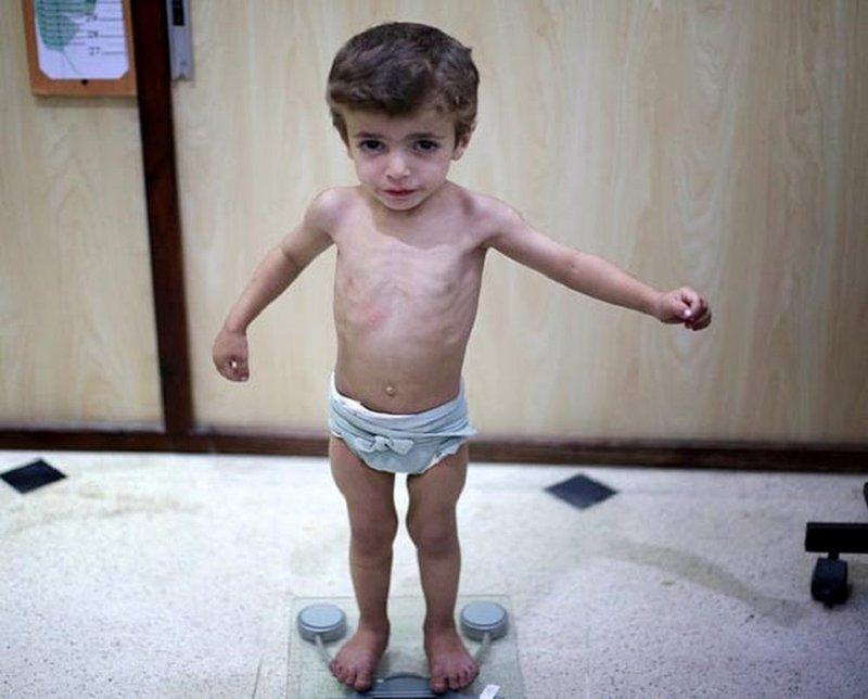 Một số biểu hiện cơ bản khi trẻ bị suy dinh dưỡng